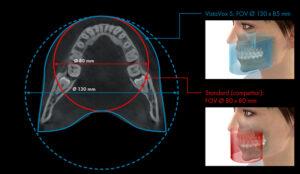 Dürr VistaVox röntgen